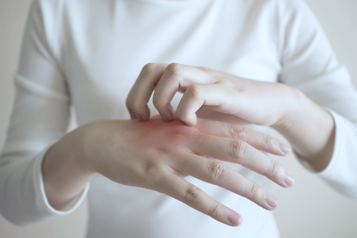 woman scratching itch on hand, close up
